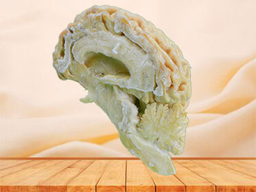 The brain hemisphere of dog plastination specimen