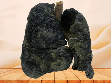 The lung of smoker