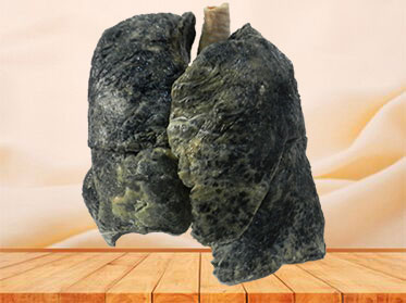 The lung of smoker plastinated specimen