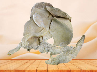 The plastination specimen of pig liver pancreas , duodenum , spleen