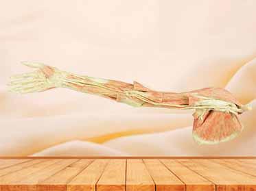 Upper limb arteries medical specimen