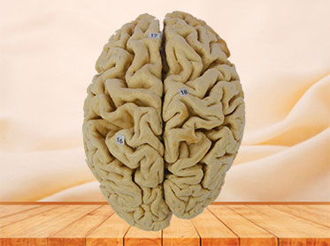 Whole brain plastination specimen