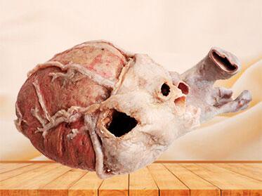 Whole heart anatomy specimen