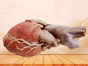Whole heart human speciemn