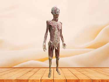 acupuncture people plastination