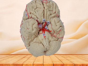 artery of whole brain plastinated specimen