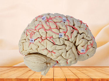 artery of whole brain plastination