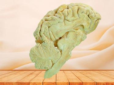 brain hemisphere of sheep specimen plastination