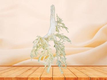 bronchial tree of cow specimen
