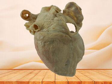 cardiac conduction system human specimen
