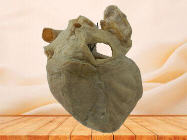 cardiac conduction system specimen