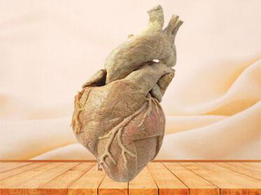 cardiac muscle anatomy specimen