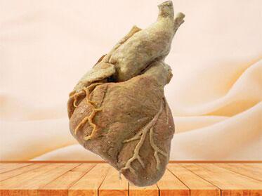 cardiac muscle plastination specimen