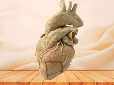 cardiac muscle specimen