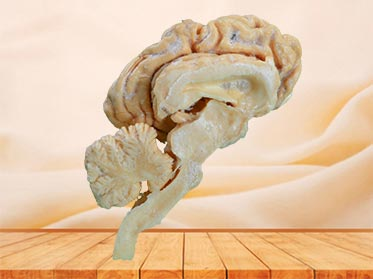 cattle  brain hemisphere plastinated specimen