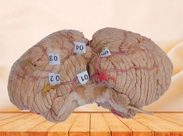 cerebellar artery plastination specimen