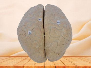 cerebral arachnoid mater