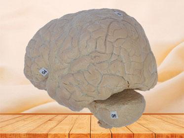 cerebral arachnoid mater plastinated specimen