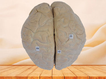 cerebral arachnoid mater plastination