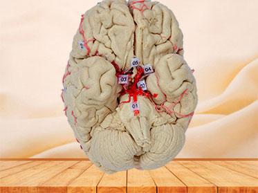 cerebral artery plastinated specimen