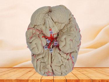 cerebral artery plastination
