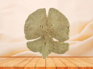 coronal section of human brain