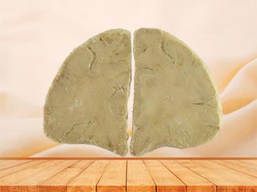 coronal section of human brain for sale