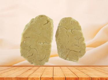 coronal section of human brain plastination