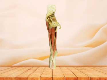 hip-mid leg plastination