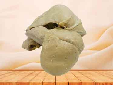 human anatomy specimen
