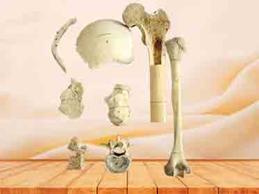 human bone specimen