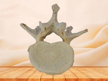 Lumbar vertebra plastinated specimen