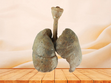 lung and larynx teaching specimen