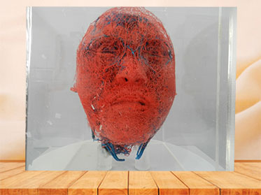 medical blood vessels of head and neck casting specimen