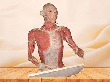 medical drawing plastinated specimen