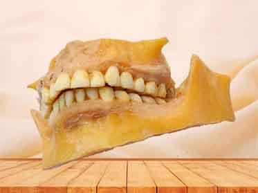 permanent teeth plastinated specimen