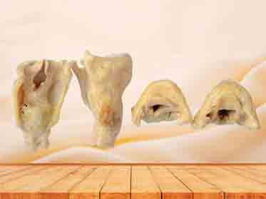 plastinated laryngeal cartilages
