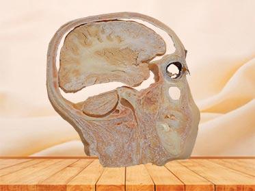 sagittal section of head plastination