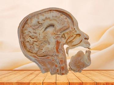 sagittal section of head specimen