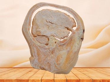 sagittal section of head specimen plastination