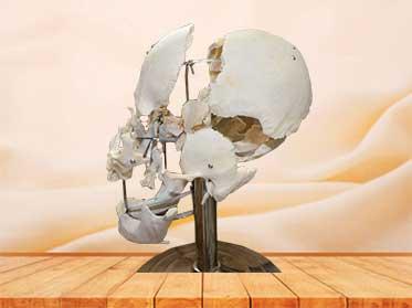 separated skull teaching plastinated specimen