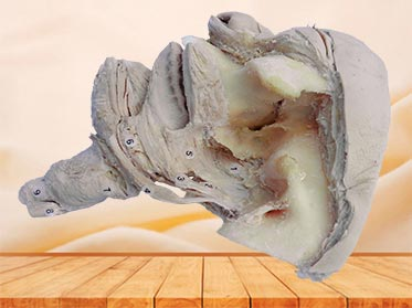 Side view of pharyngeal muscle plastinated specimen