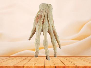 superficial palmar arch medical specimen