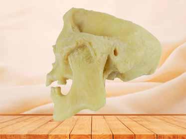 temporal-mandibular joint
