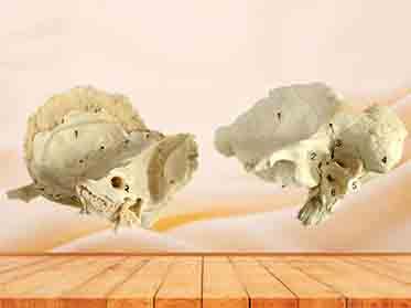 temporal bone specimen
