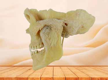 temporomandibular articulation specimen
