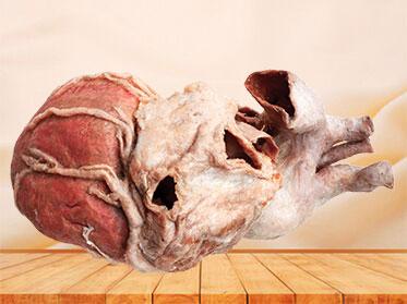 whole heart plastination specimen